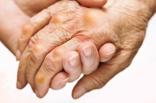 Bệnh gút (Gout), trong Đông y gọi là bệnh thống phong