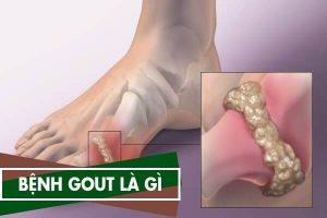 Bệnh Gout là gì, nên ăn gì kiêng gì - Cách chữa bệnh Gút đơn giản