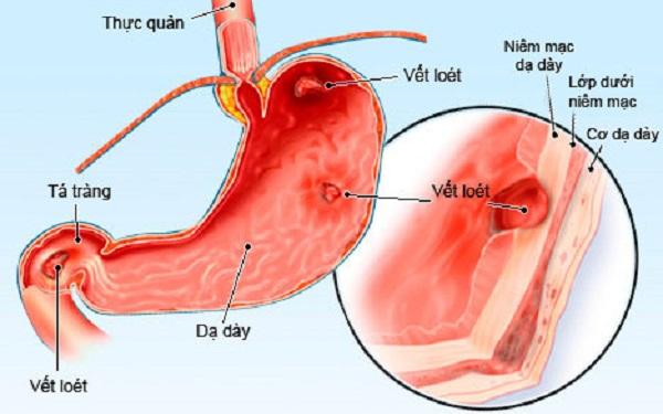 Các loại bệnh nguy hiểm về dạ dày cấp tính, mãn tính