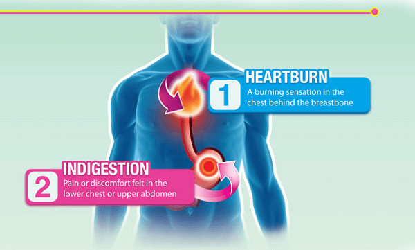 Ợ nóng - Hội chứng bệnh trào ngược dạ dày thực quản là gì, biểu hiện gì?