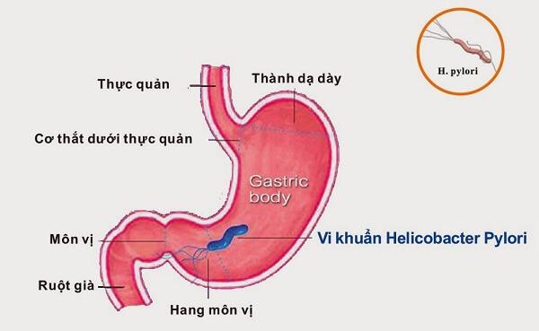 Tình trạng bệnh viêm hang vị dạ dày phù nề xung huyết còn được gọi là viêm hang vị dạ dày xung huyết.