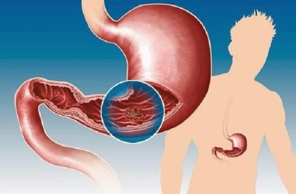 Người bị viêm loét dạ dày nên uống thuốc gì chữa viêm loét hiệu quả nhanh